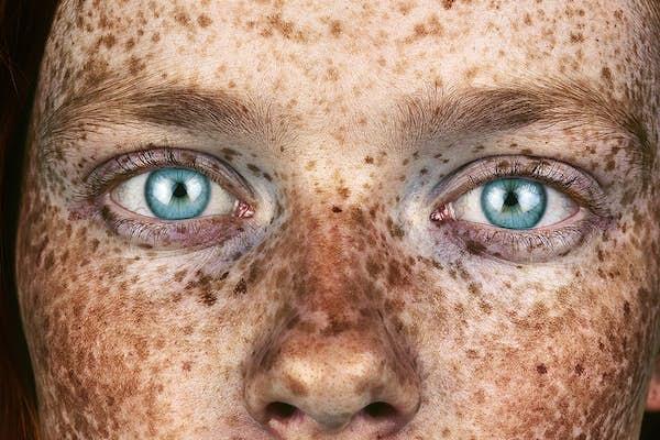 Bild - Freckles